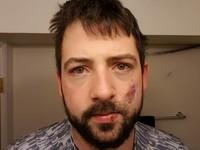 Опасность на лицо: Американец лишился семи зубов из-за взрыва электронной сигареты