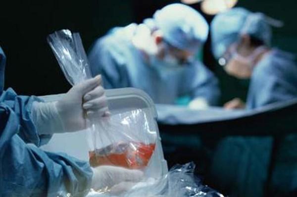 Картинки по запросу трансплантация органов